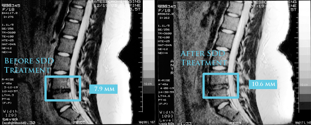 Before and After Spinal Decompression Therapy